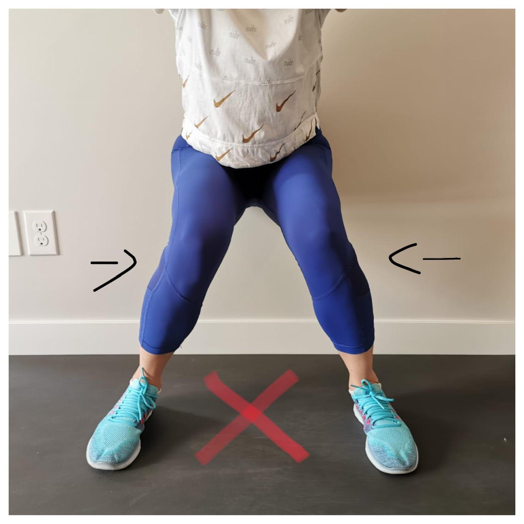 Knee Valgus When Squatting